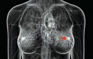 Mamograija