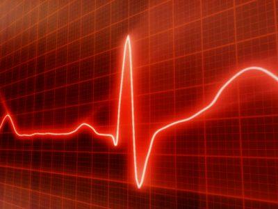 EKG-opšte karakteristike