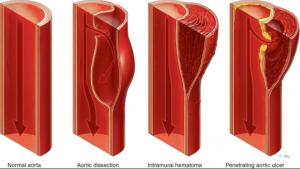disekcija-aorte