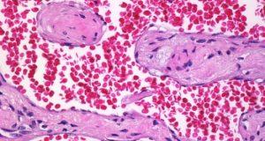 tumori-krvnih-sudova