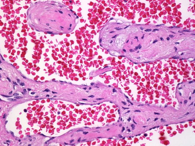 Tumori krvnih sudova