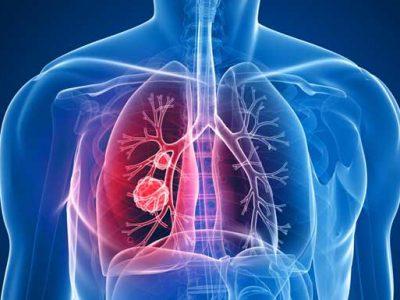Tumori pluća