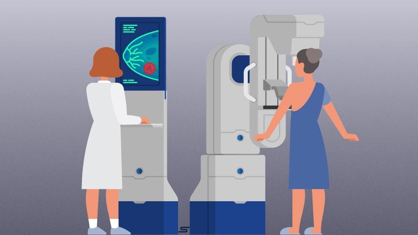 Rano otkrivanje karcinoma dojke