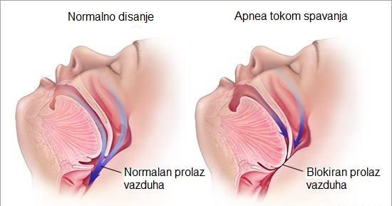 opstruktivna-apnea-u-spavanju-osa