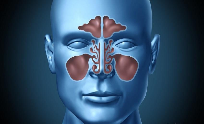 Sinuzitis