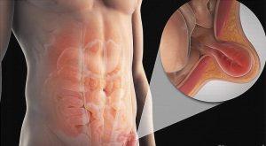 femoralna i umbilikalna kila