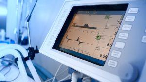 mehanička ventilacija pluća
