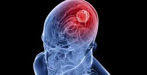 virusni encefalitis