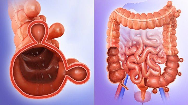 Divertikularna bolest gastrointestinalnog trakta