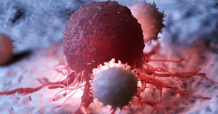 Naučnici-uništavaju-tumorske-ćelije-ultrazvukom