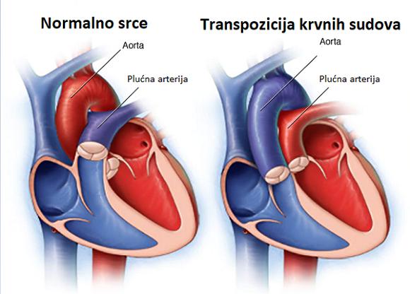 Transpozicija velikih krvih sudova
