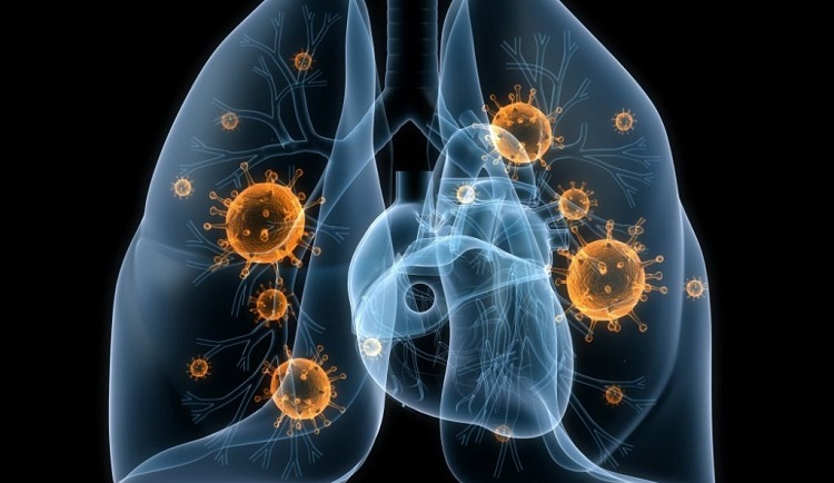 virusne i bakterijske pneumonije
