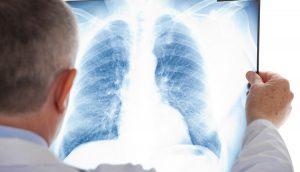 virusne-i-bakterijske-pneumonije