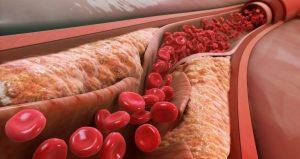 bolesti-krvnih-sudova-1