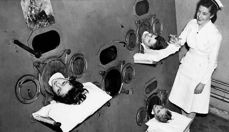 čelična pluća i poliomijelitis