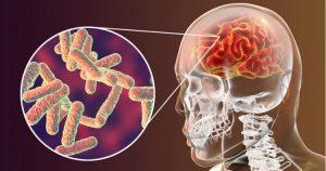 kako-se-ispituju-meningealni-znaci-2