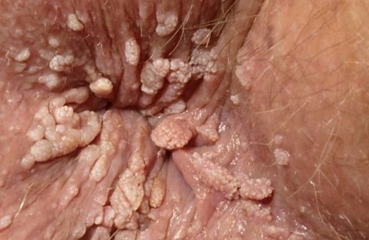 humani-papiloma-virus-hpv