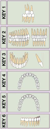 sest-kljuceva-okluzije
