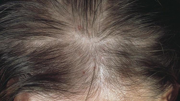 alopecija-celavost