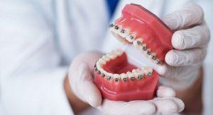 fiksni-ortodontki-aparat-7