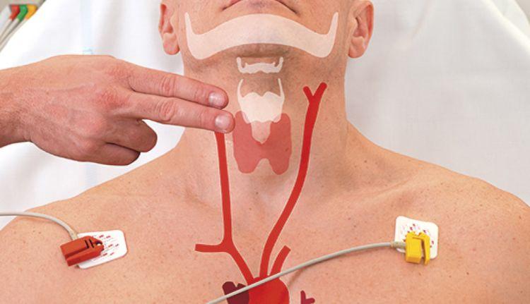 Masaža karotidnih arterija