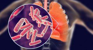 mitovi-o-tuberkulozi