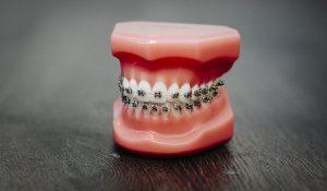 podela-ortodontskih-aparata-77
