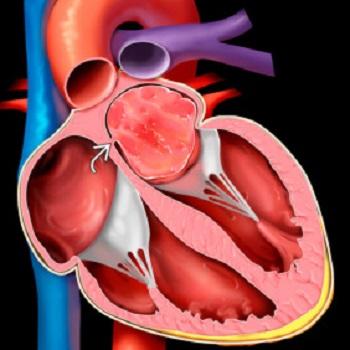 tumori srca