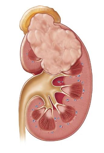 Maligni tumori bubrežnog parenhima