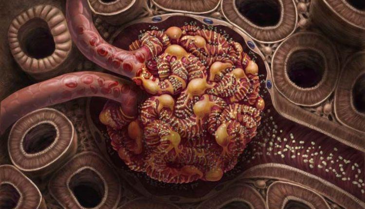 autoimuni-glomerulonefritis-1