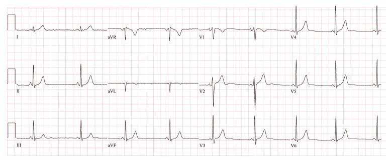 Preekscitatorni sindrom - elektrokardiografija