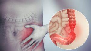 sindrom-iritabilnog-kolona