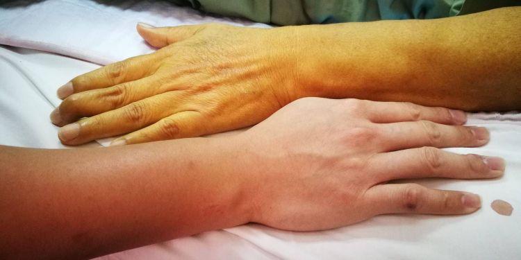 Žilberov sindrom - Syndroma Gilbert